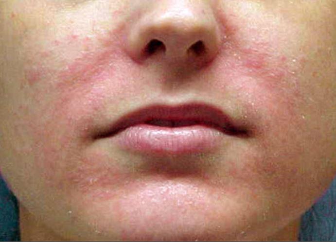 инфекции кожи фото