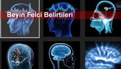 Beyin Felci Belirtileri