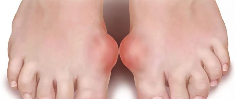 Gut Hastalığı Belirtileri