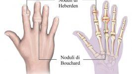 Osteoartrit Belirtileri