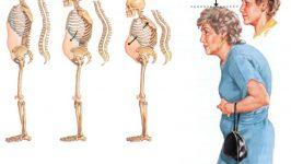 Osteoporoz Belirtileri