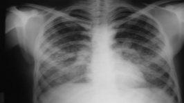 Pulmoner Emboli Belirtileri