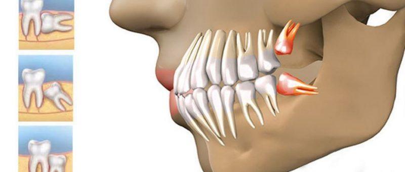 Yirmilik Diş Belirtileri