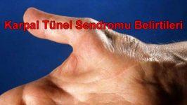 Karpal Tünel Sendromu Belirtileri