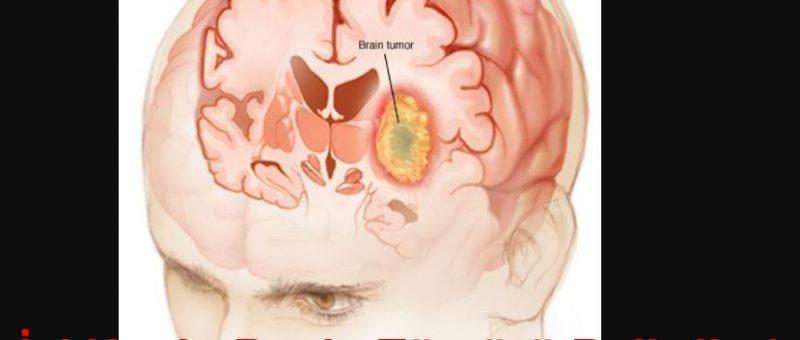 İyi Huylu Beyin Tümörü Belirtileri