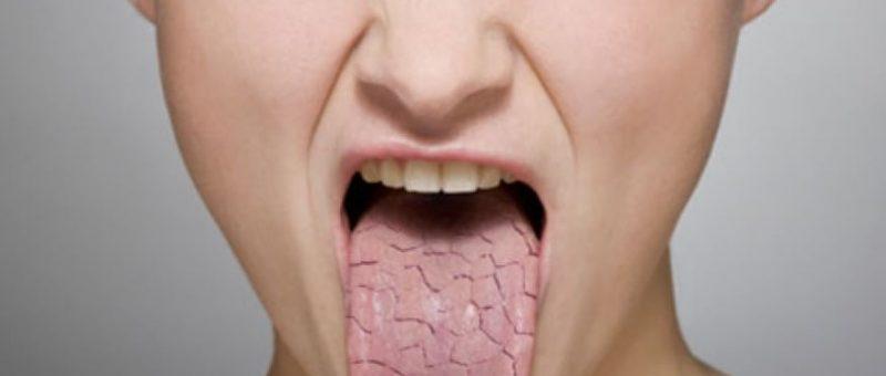 Sjögren Sendromu Belirtileri