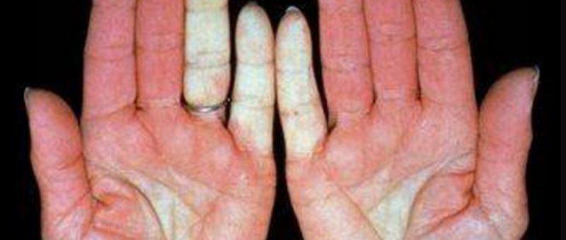 Skleroderma Belirtileri