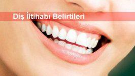 Diş İltihabı Belirtileri