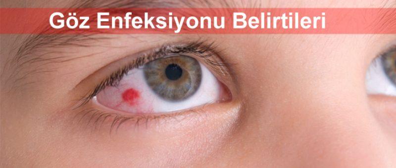 Göz Enfeksiyonu Belirtileri