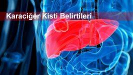 Karaciğer Kisti Belirtileri