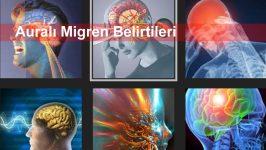 Auralı Migren Belirtileri
