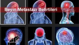 Beyin Metastazı Belirtileri