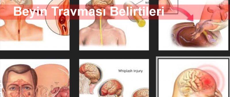 Beyin Travması Belirtileri