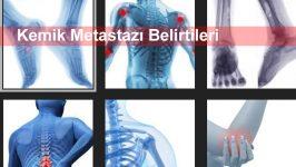 Kemik Metastazı Belirtileri
