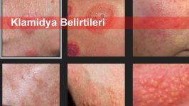 Klamidya Belirtileri