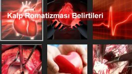 Kalp Romatizması Belirtileri