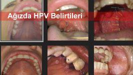 Ağızda HPV Belirtileri
