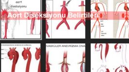 Aort Diseksiyonu Belirtileri
