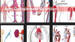 Aort Genişlemesi Belirtileri