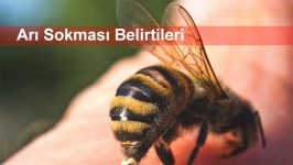 Arı Sokması Belirtileri