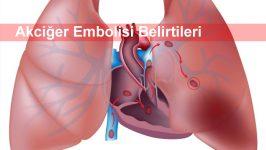 Akciğer Embolisi Belirtileri