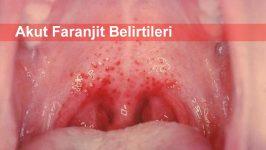 Akut Faranjit Belirtileri