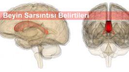 Beyin Sarsıntısı Belirtileri