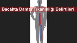 Bacakta Damar Tıkanıklığı Belirtileri